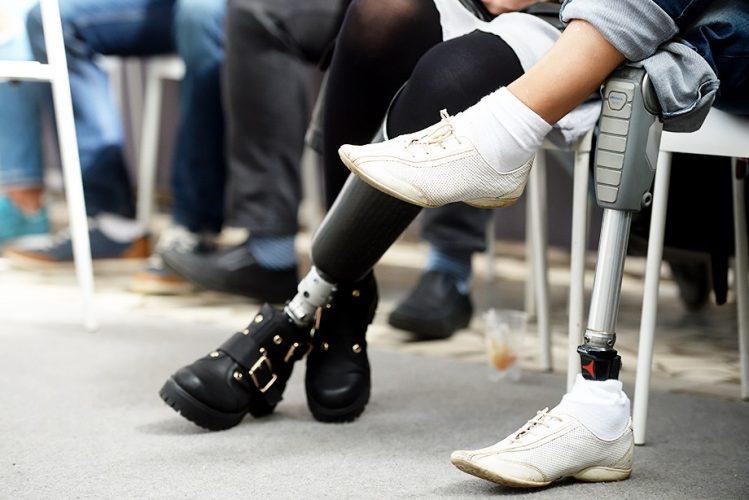 Вспыхнул новый скандал среди спортсменов.Британские паралимпийцы укорачивали конечности для соревнований со слабыми соперниками