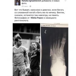 В ноге Игнашевича навсегда останется шуруп после хирургического вмешательства